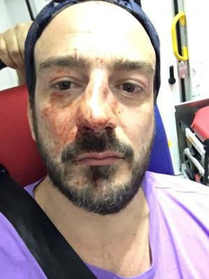 Homophobie à Paris : Le président de l'association Urgence Homophobie agressé hier soir